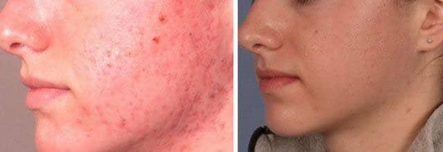дермабразия до и после