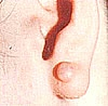 roddo